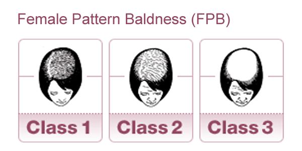 femalepatternbaldness
