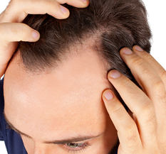 Hair thinning for men